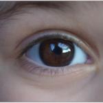 子供の霰粒腫はなぜ繰り返す?治らない理由と対処法について