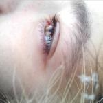 目の下のピクピクが止まらない!痙攣する原因と治し方とは?